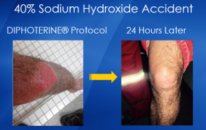 sodium hydroxide accident with diphoterine