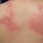 How to manage chemical burns in the workplace (free webinar)