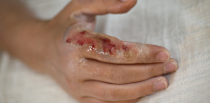 Managing Chemical Burns: Your Top Questions Answered (Webinar Recap)